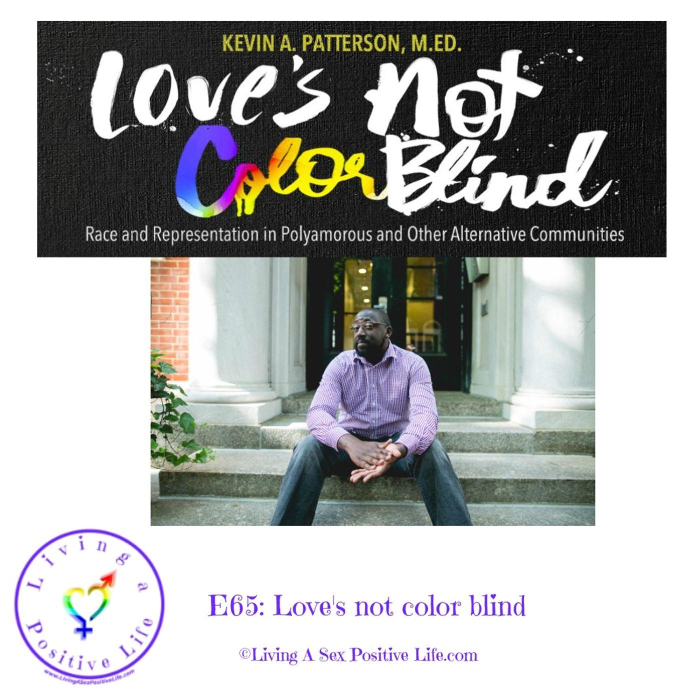Sex Positive Me - E65: Loves Not Color Blind