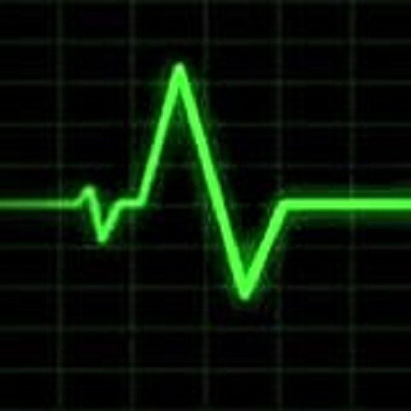 pulsebeat-174