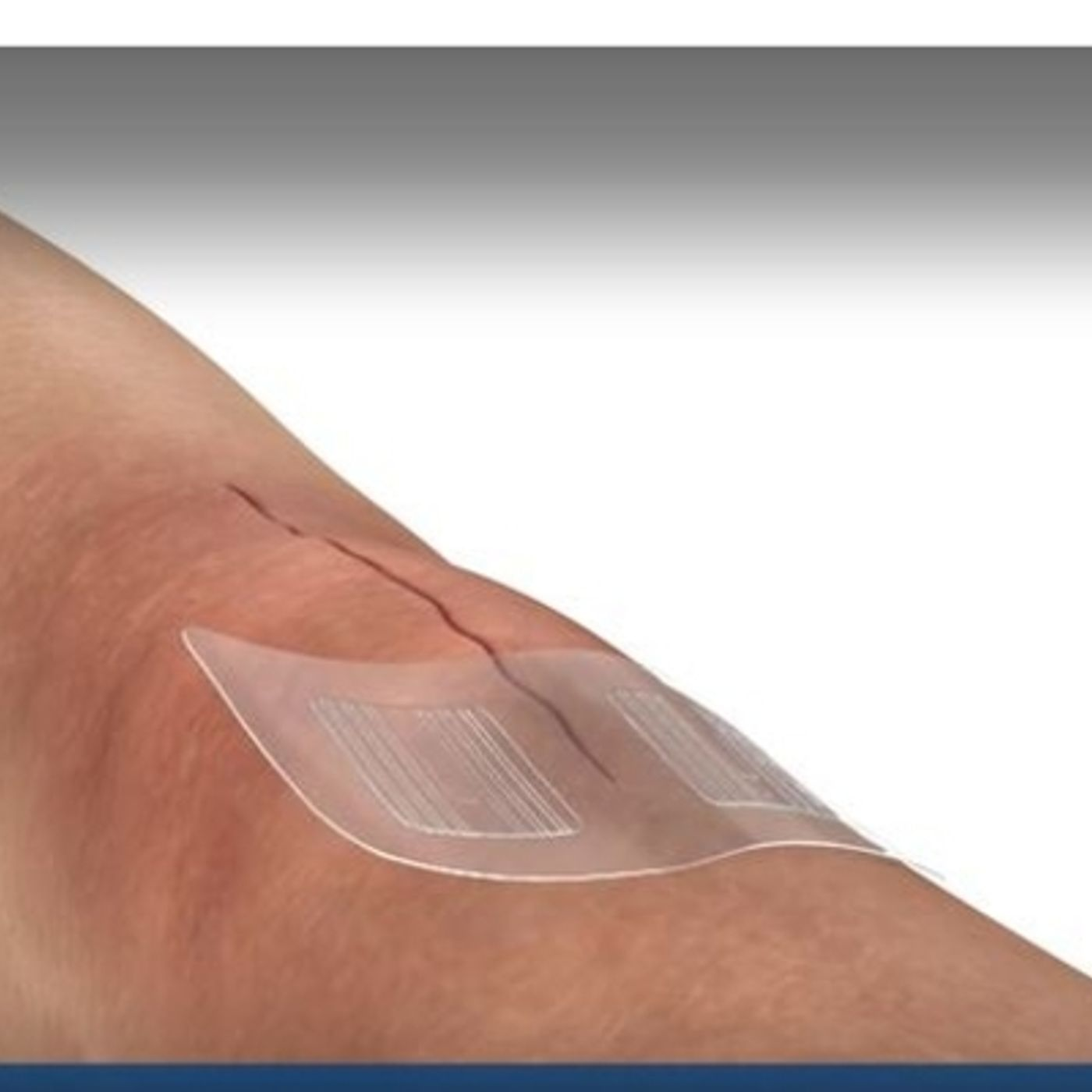 Advanced Wound Closure Technology with Fred Smith from BandGrip