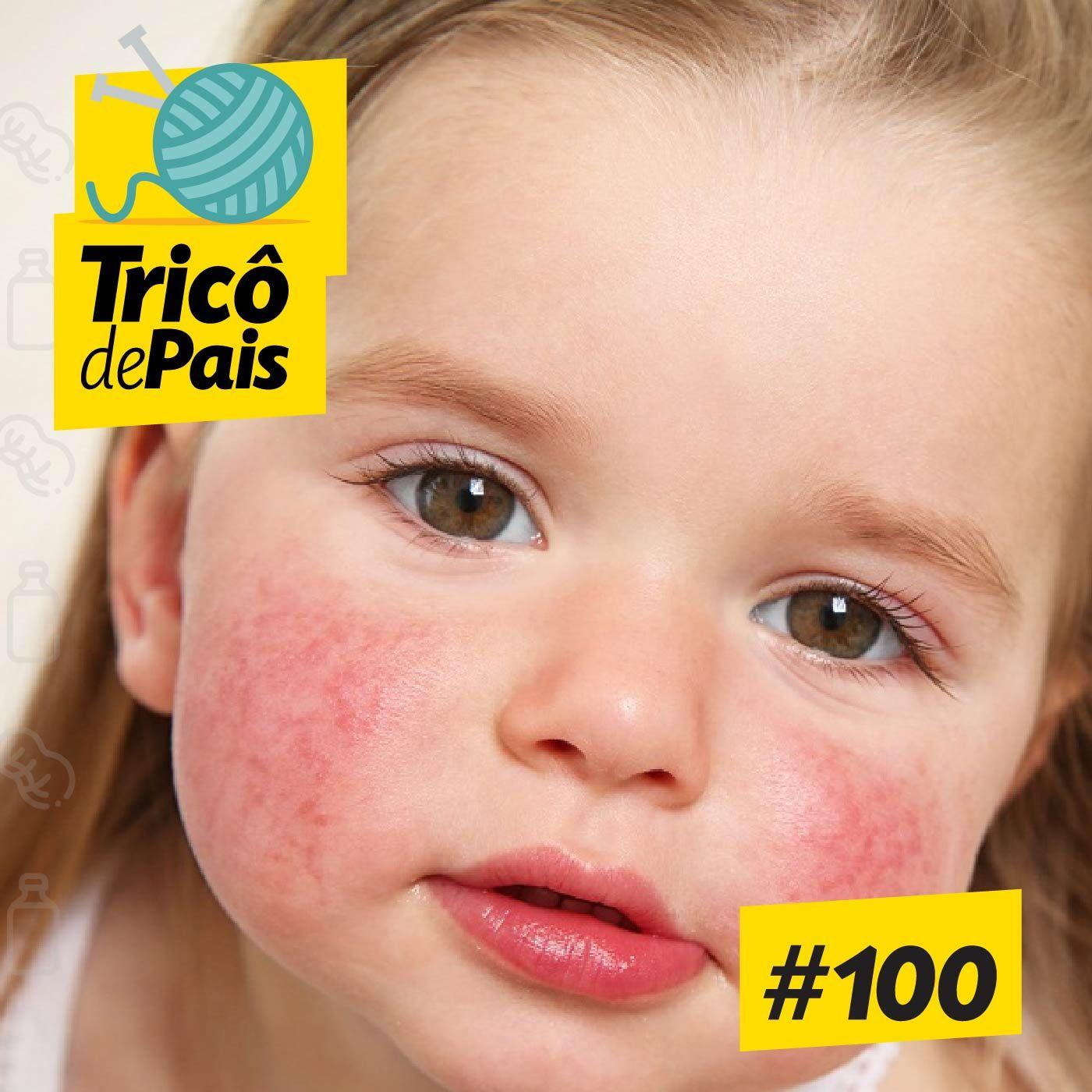 #100 - É Alergia ou Frescura? feat. Laura Gomes e Marko Mello
