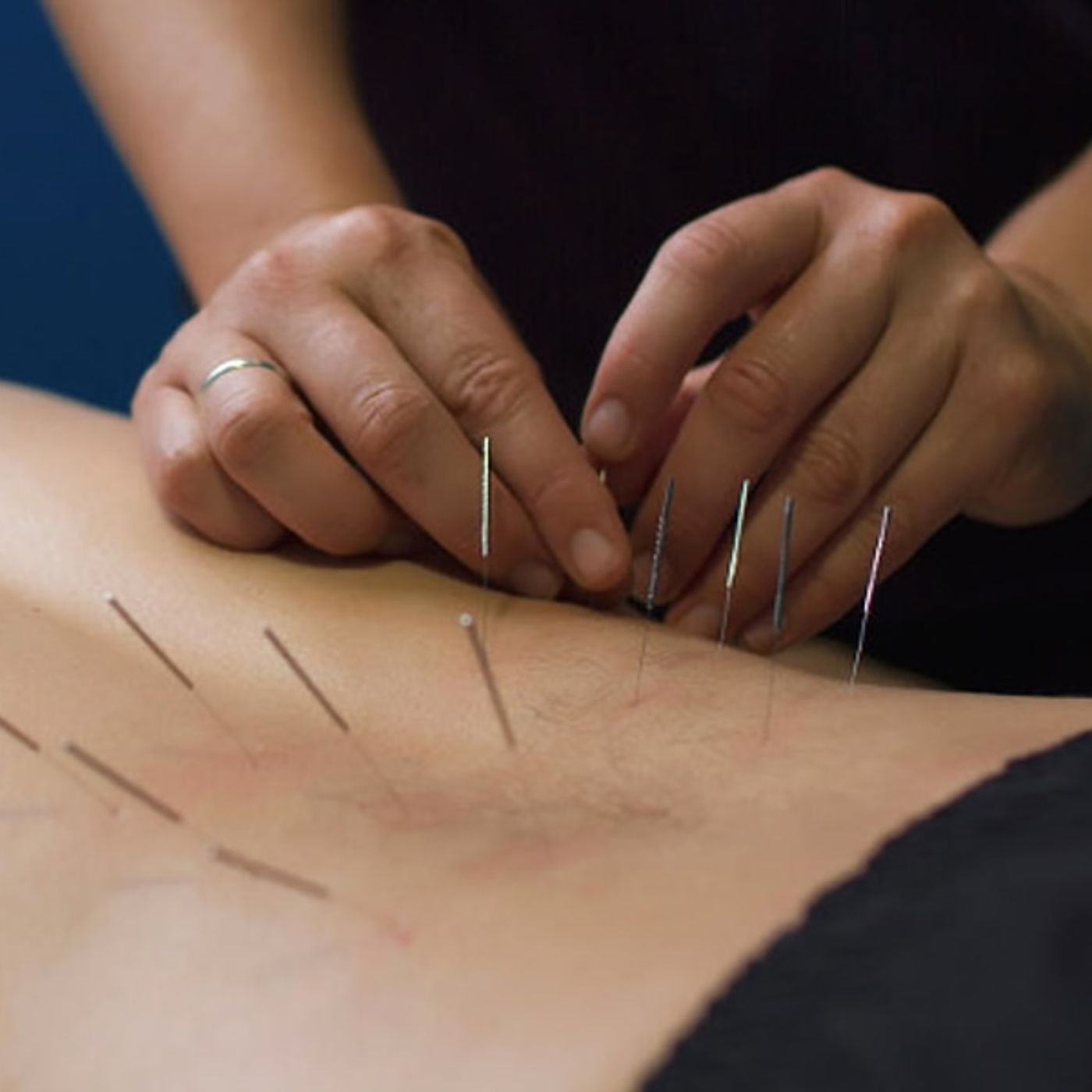EP 132: Dry Needling and Blood Flow Restriction with Athletico Physical Therapy