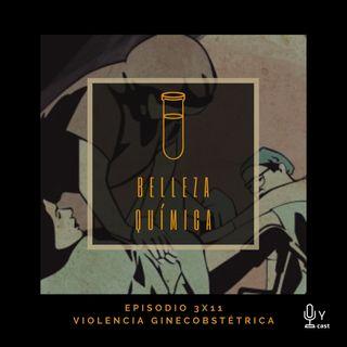 3x11 Violencia ginecobstétrica