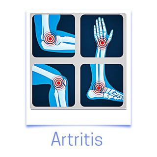 Episodio 5 - Artritis reumatoide