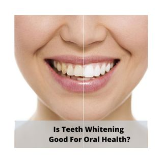 Teeth Whitening: How To Do Teeth Whitening Using Toothpaste?