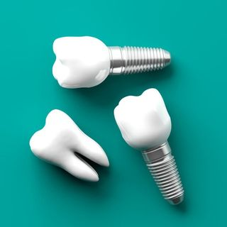 Reduce throbbing pain after getting dental implants