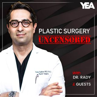 S3E8:  Rhinoplasty 101; What To Know & What To Ask