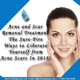 Acne and Scar Removal Treatment
