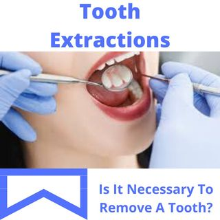 Tooth Extraction: What Is Tooth Extraction?
