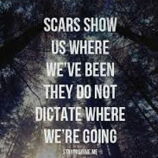 Kandid With Kay -Your Scars Says You've Survived