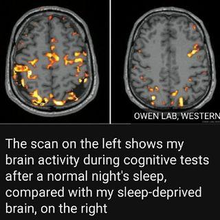 The SLEEP DEPRIVED BRAIN
