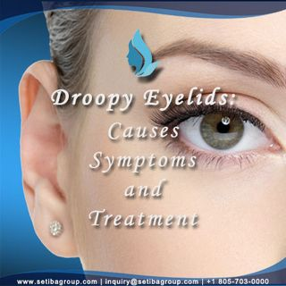 Droopy Eyelids Causes, Symptoms and Treatment