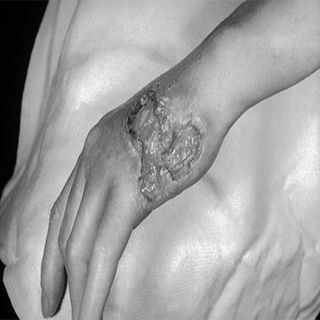 Gummatous Disease in Tertiary Syphilis