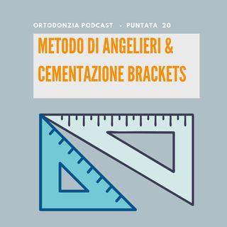 Metodo di Angelieri nella routine & Cementazione brackets