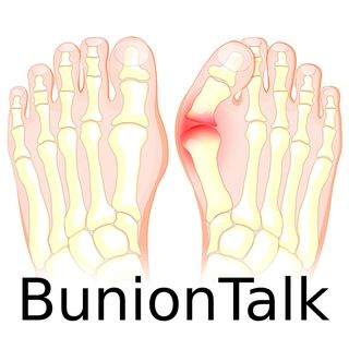 What You Need To Know About Bunions