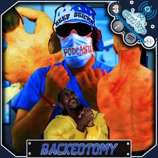 Backeotomy