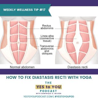 How To Fix Diastasis Recti with Yoga | Weekly Wellness Tip 17