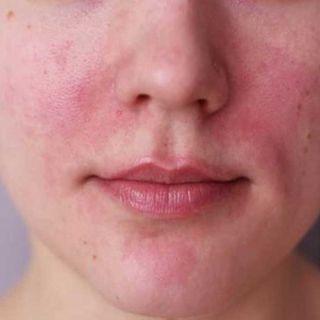La piel anda muy sensible