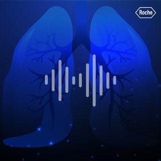 Retos y avances en cáncer de pulmón de célula pequeña