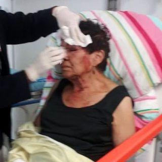 Causa indignación golpiza que sufrió exdiputada del PAN