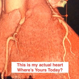 Karel Tues Mar 15 Mo Langan Plus, Where is Your Heart Truly?
