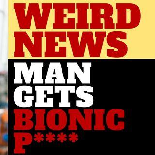 WEIRD NEWS - MAN GETS BIONIC P****