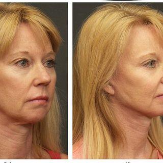 plastic surgery bellevue