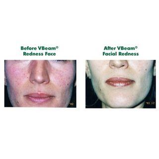 Health Check: How Treat Broken Facial Capillaries