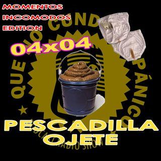 04x04 Pescadilla Ojete