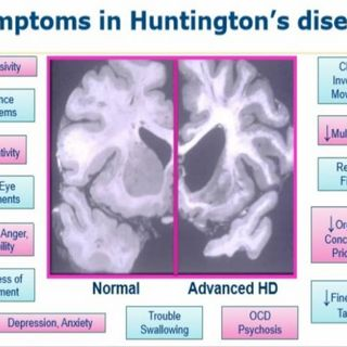 The Softer Symptoms of Huntington's PT 1.
