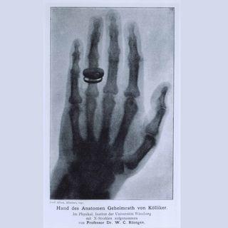 Erste Röntgenaufnahme einer Hand (am 22.12.1895)