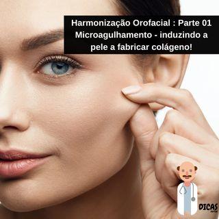 079 Harmonização Orofacial : Parte 01 - Microagulhamento - induzindo a pele a fabricar colágeno!