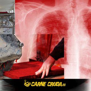 Carne Cruda - Esta encimera cuesta un pulmón (#797)
