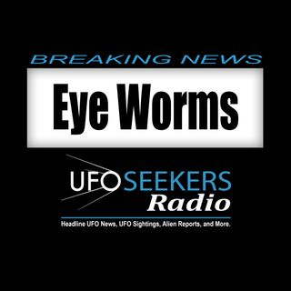 NEWS: 14 Half Inch Worms Pulled From Woman's Eye In Oregon - 02/13/2018