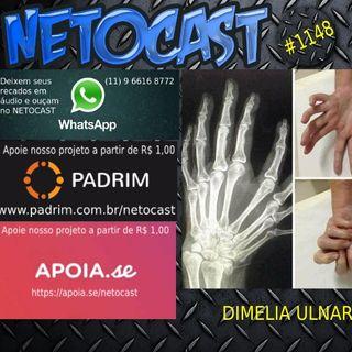 NETOCAST 1148 DE 11/05/2019 - CURIOSIDADES - DIMELIA ULNAR