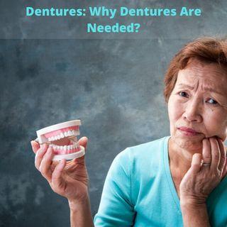 Dentures: What Is Dentures?