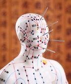 Acupuncture 101...What it is and how it works.