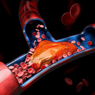 Blacks & Blood Clots: One of the reasons why heart attacks and strokes are killing us.