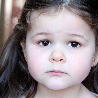 ¿Palidez en niños es señal de anemia?
