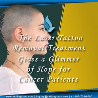 The Laser Tattoo Removal Treatment Gives a Glimmer of Hope for Cancer Patients