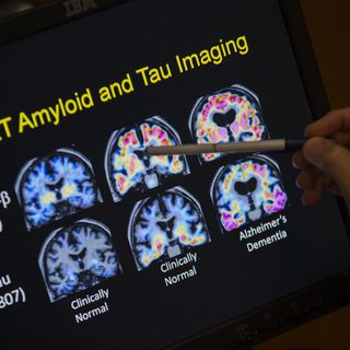Scoperta una molecola che blocca l'Alzheimer