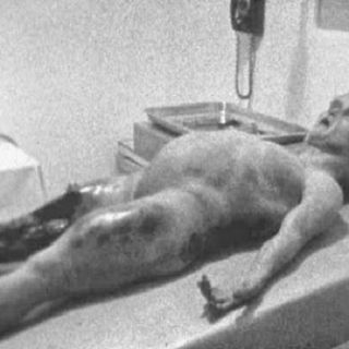 HPANWO Show 336- Alien Autopsy Revisited