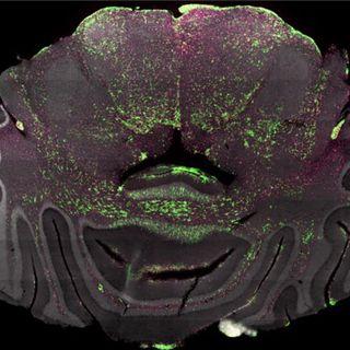 #2.2 - Beyin Tümörüne İmmünoloji Tedavi, 3 Aylık Bebekler İnsanı Nasıl Algılar, ß-Thalassemia Gen Tedavisi, Preadipositler
