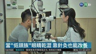 13:45 愛用3C乾眼症年輕化 針灸改善症狀 ( 2019-03-17 )