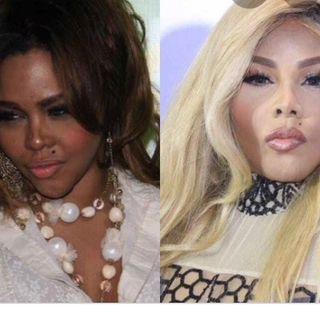 Melanin vs skin whitening