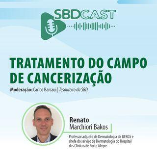 #T1E9 - 07/04/2021 - Tratamento do campo de cancerização