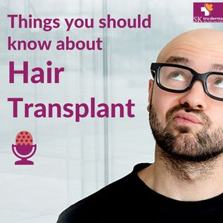 Things That You Should Know About Hair Transplant