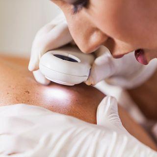 SALUD21: Tres simples pasos para prevenir el cáncer de piel