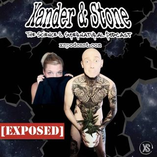Exposed - Xander & Stone answer your questions.