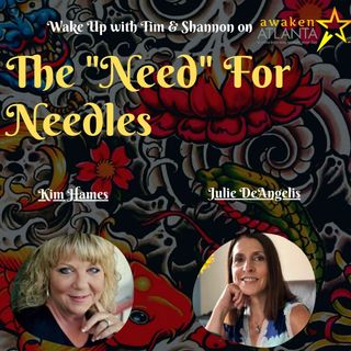 The Need for Needles