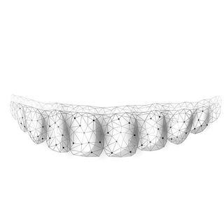 Le mascherine per allineare i denti sono efficaci?